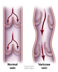 varicose veins image