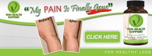 treatment varicose veins