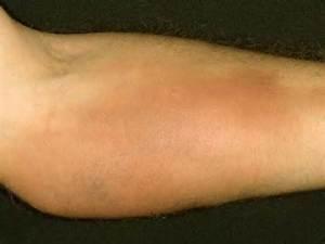 phlebitis arm