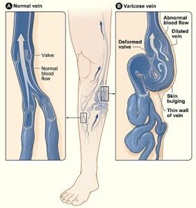 Different=Varicose_veins